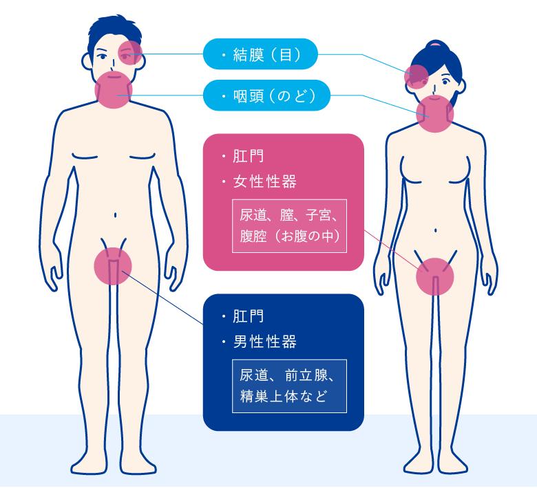 クラミジア感染部位